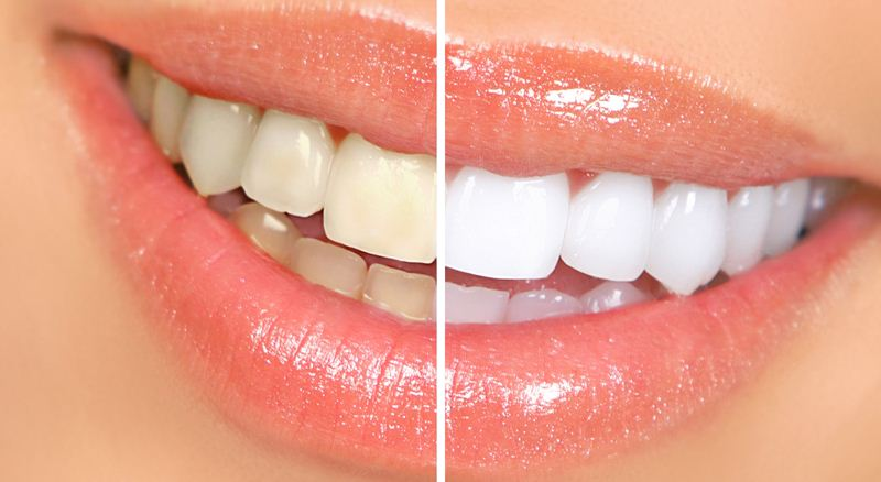 5 Home Remedies for Whiter Teeth