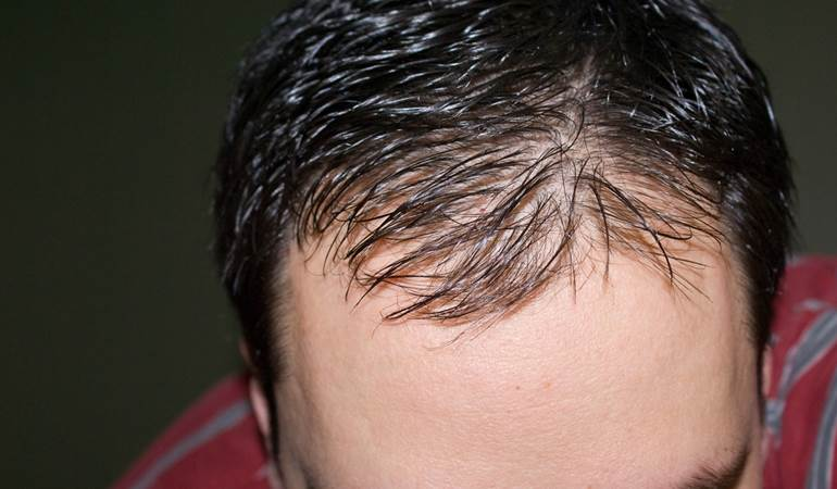 the causes of baldness in human beings But thinning hair and hair loss are also common in women, and no less  health com: how to get rid of annoying body problems physical.