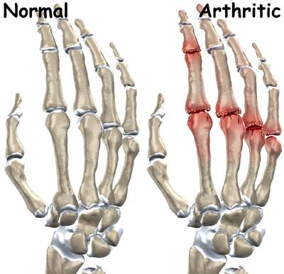 How To Treat Arthritis In Hands Naturally