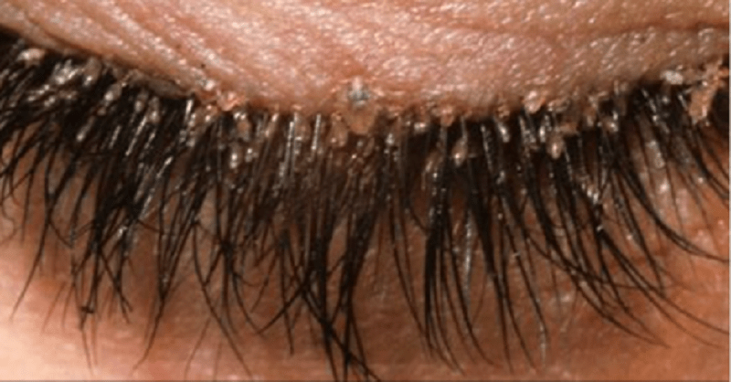 You Have Mites In Your Eyelashes And Here Is What You Must Do ...