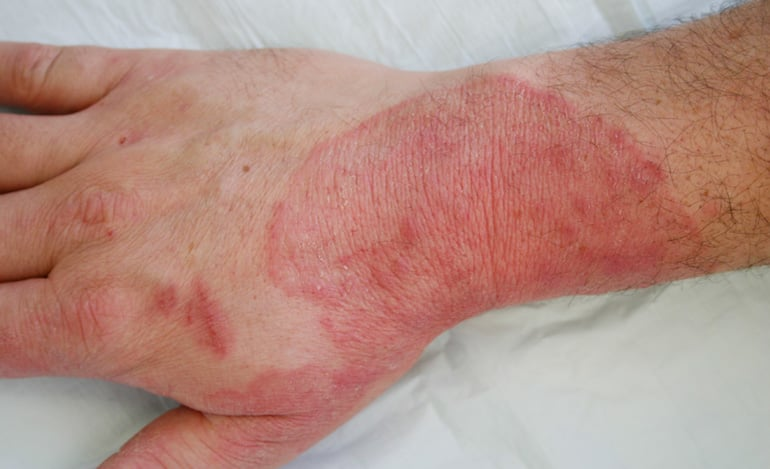 ringworm and other skin infections