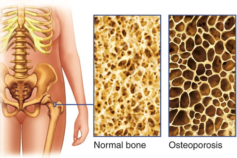 Osteoporosis is caused by milk