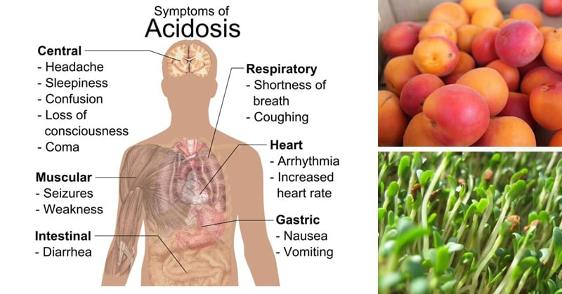 Foods To Alkalize Acidity