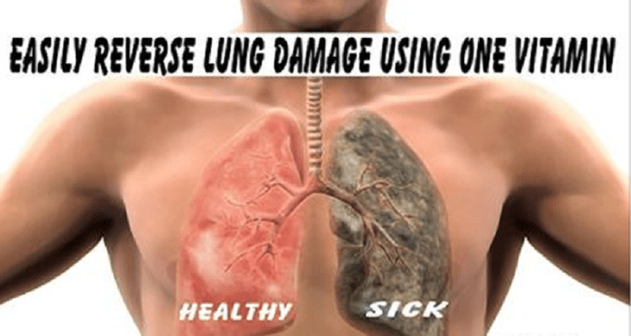 Lung Damage