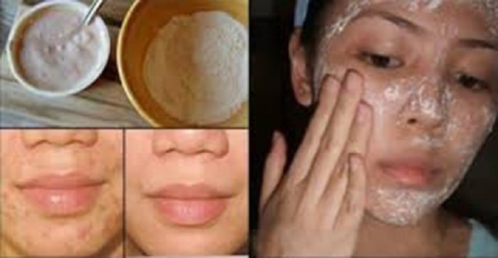 remove Acne and scars