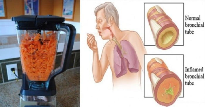 CARROTS juice for cough