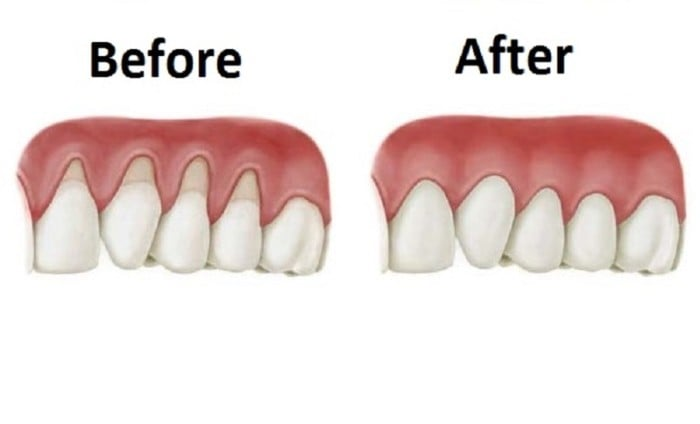 Grow-Back-Your-Receding-Gums