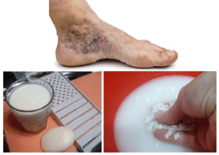 Natural Remedies To Beat Gout