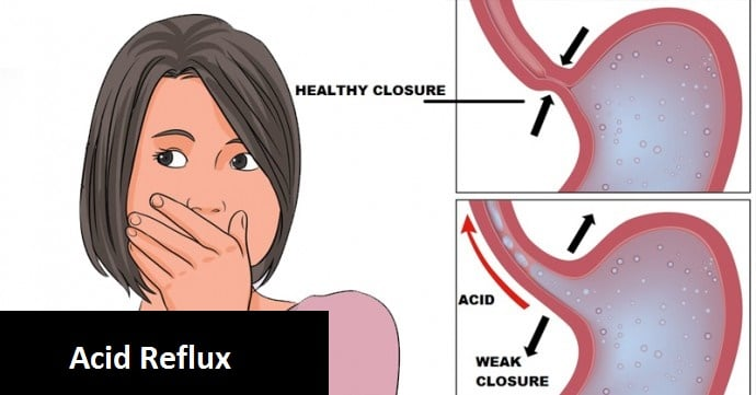 Natural Treatments and Remedies for Acid Reflux