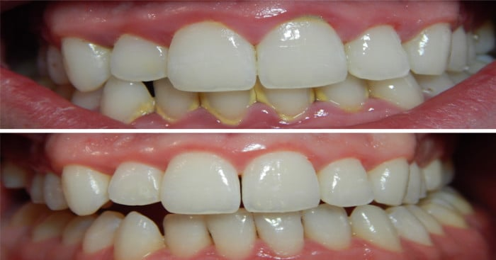Remove Tartar From Teeth Naturally