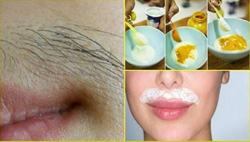 remove mustaches-and-other-unwanted-hair