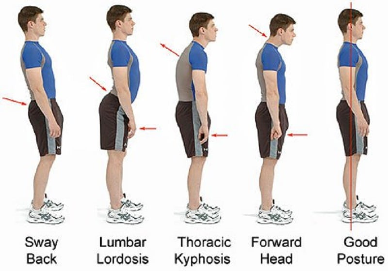 6 Bad Postures That Are Ruining Your Health