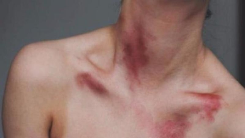 Are hickeys on your breast bad