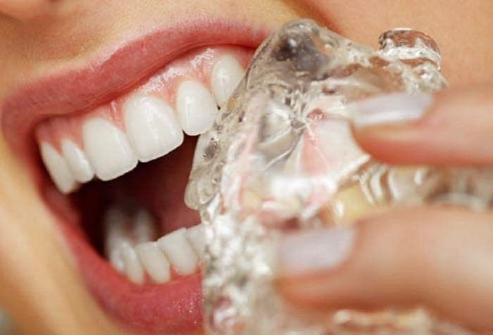 19 Habits That Wreck Your Teeth