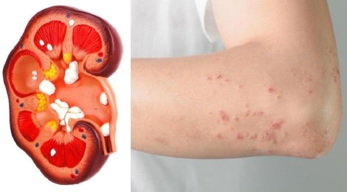 8 Signs Your Body Tells You That Your Kidneys Are In Danger