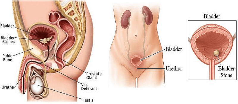 Signs of an ulcer in adults