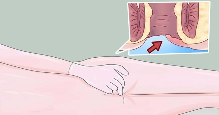Early warning signs of Anal Cancer