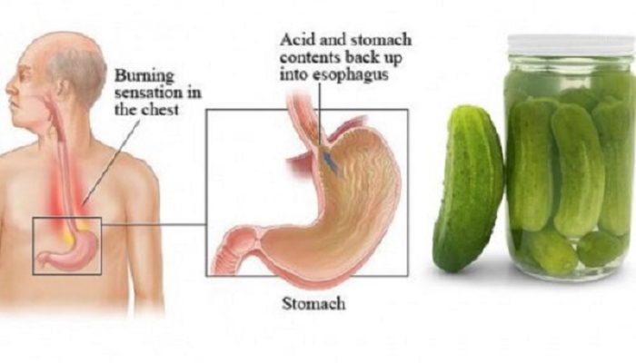 Here Is Why You Should Drink Up That Pickle Juice