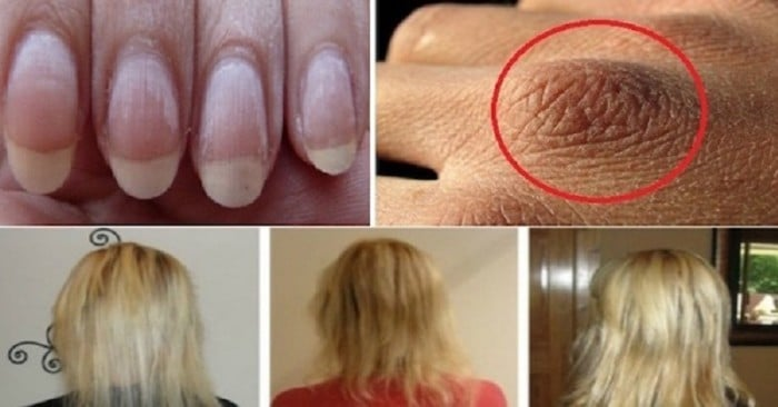 Home Remedies for Dry Skin, Weak Nails Or Hair Loss