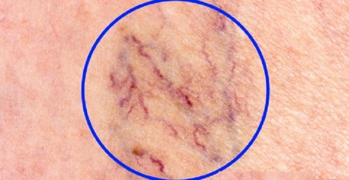 How to naturally get rid of spider varicose veins