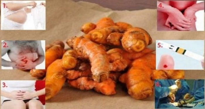 Stop Using Turmeric If You Are One Of These 6 Types Of People