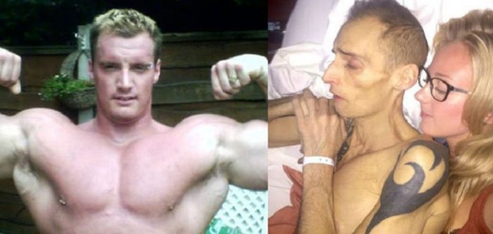 This Bodybuilder Dies From Liver Cancer After Consuming 8 Energy Drinks Daily