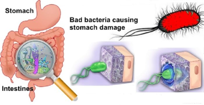 How To Treat Stomach Infection Naturally