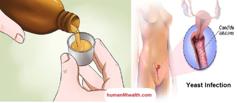 oral sex cause yeast infection № 15