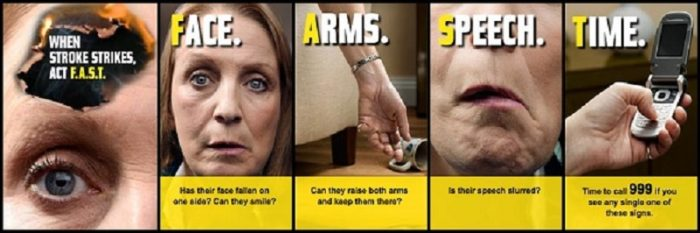 What-Are-the-Early-Signs-and-Symptoms-of-a-Stroke