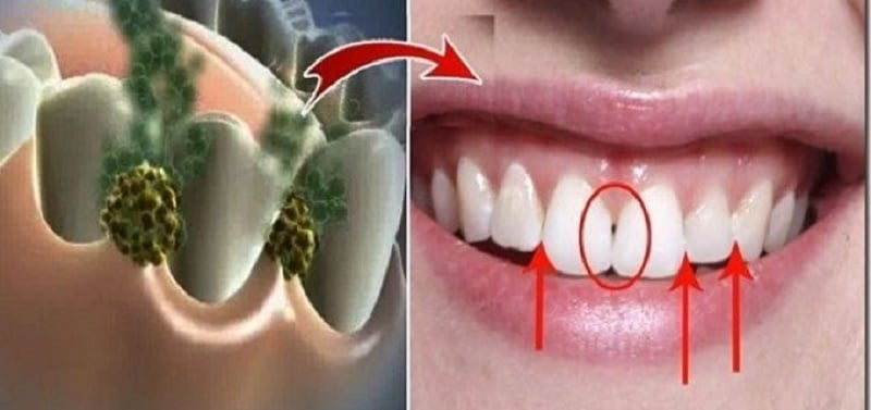 eliminate-bad-breath-in-5-minutes
