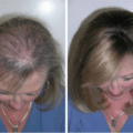header-oil-for-thickening-and-regrowing-hair-eyelashes-and-eyebrows