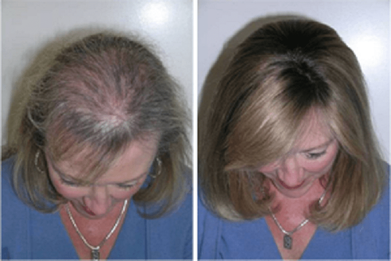 Regrowing Hair Naturally Pdf