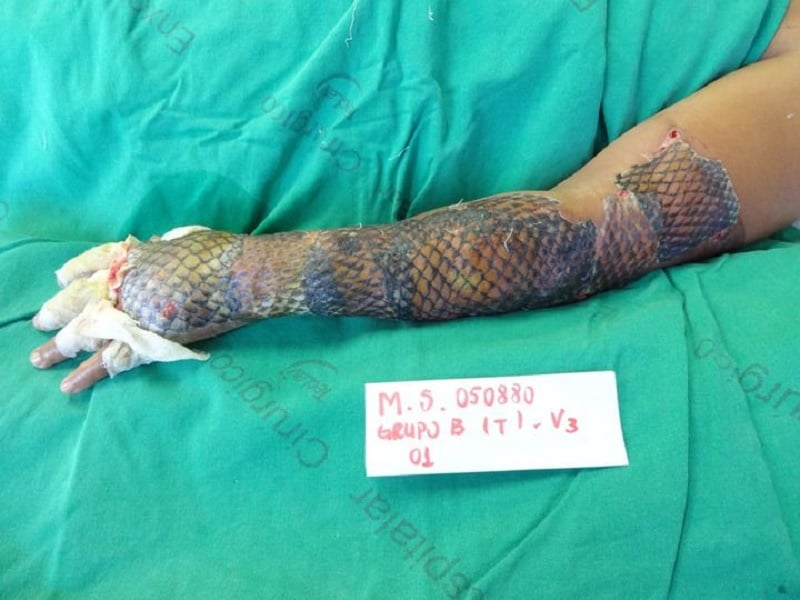 second degree burns treated with fish skin in world first