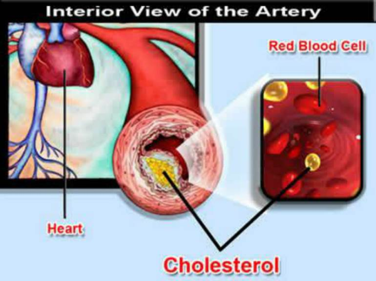 How You can Lower Your Cholesterol Naturally