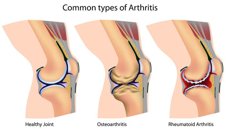 arthritis common types