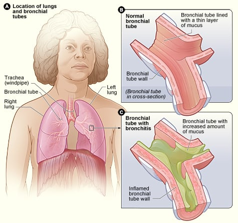 Home Remedies For Bronchitis also S besides Id C E Fc Fabe besides Bronchitis moreover Saltroom. on bronchial tubes with bronchitis