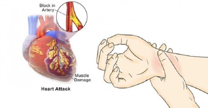 the symptoms and causes of heart attacks in humans Heart attacks can start slowly and cause only mild pain or discomfort symptoms can be mild or more intense and sudden symptoms also may come and go over several.