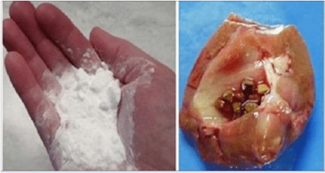 How To Repair Your Damaged Kidney With Only 1 Teaspoon Of