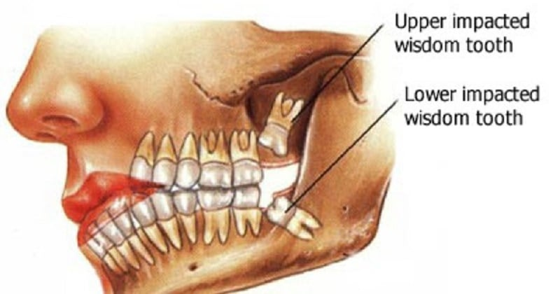 wisdom teeth essay The decision to remove wisdom teeth often seems like a routine part of young adulthood but more people are starting to ask whether it's always necessary those who oppose automatically taking out those four teeth say watchful waiting is a better path because the teeth and.