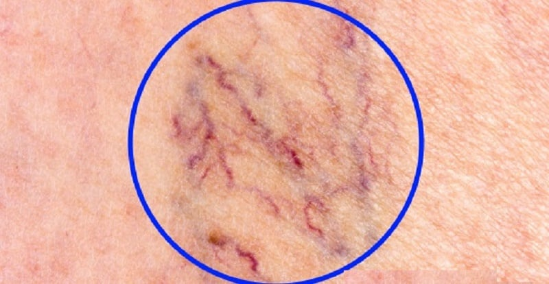 Can You Get Rid Of Spider Veins Naturally