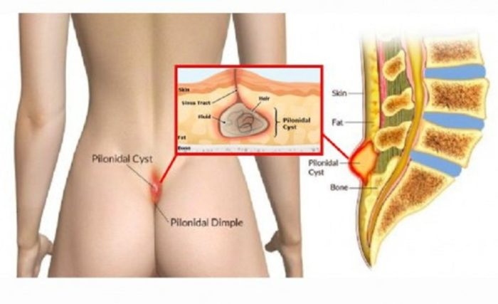 What is Pilonidal Disease and Ways to Treat it Naturally