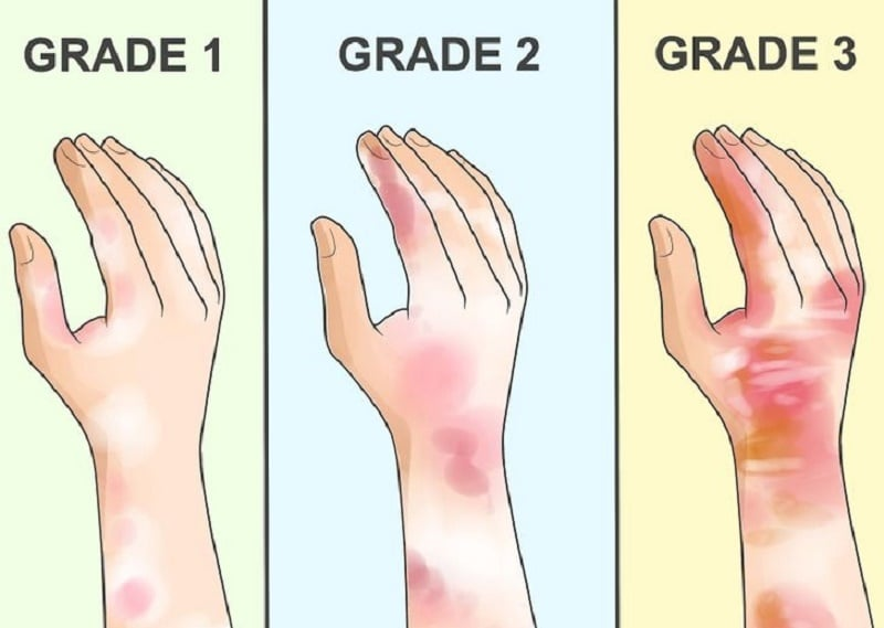 Image Result For Can You Bandage