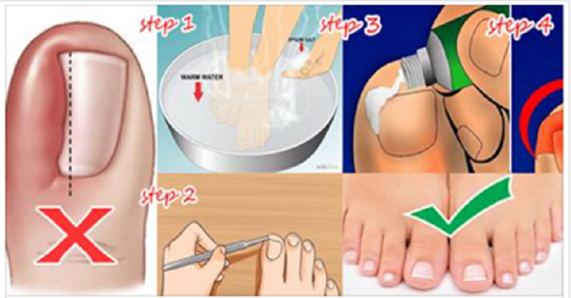 Natural Home Remedy For Ingrown Toenails Human N Health